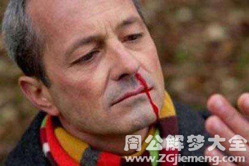 鼻子受伤流血